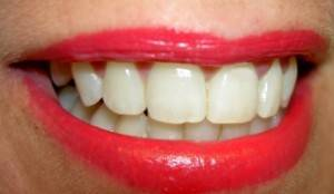 Как проверить прикус зубов самостоятельно