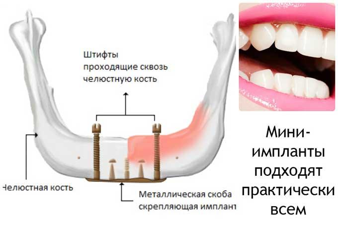 микро-импланты