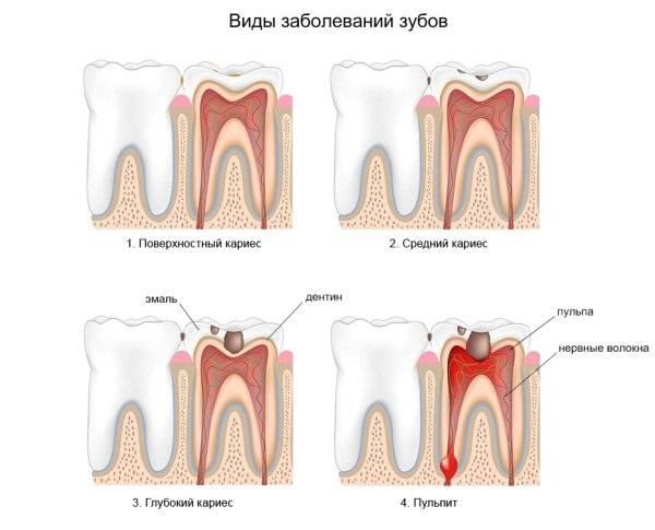 Заболевание зубов и их лечение