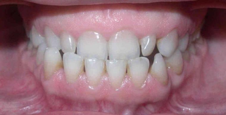 смыкание челюстей