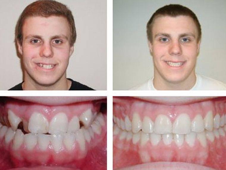 До и после коррекции окклюзии