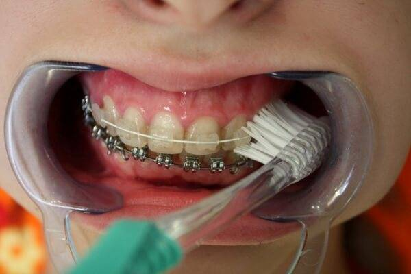 модель oral b ortho