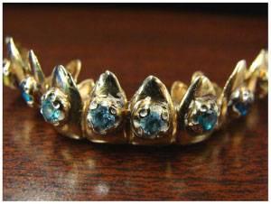 Хочу вставить золотые зубы