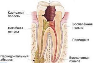 Сколько болит зуб после чистки каналов и временной пломбы