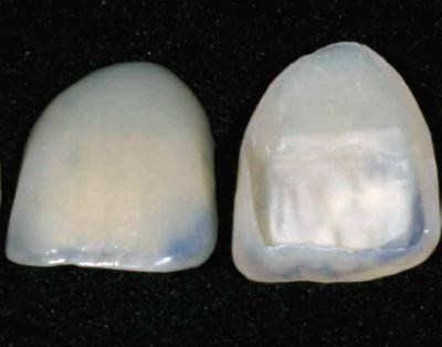 что такое виниры для зубов