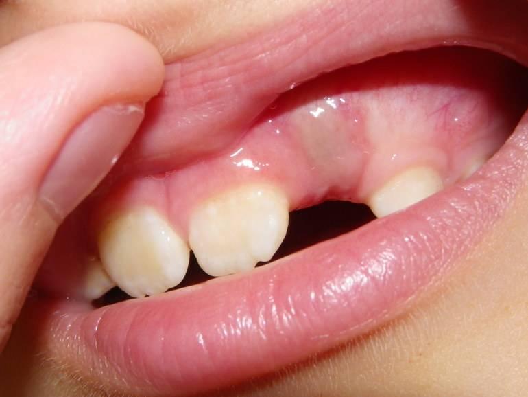 Синяя десна у ребенка при прорезывании зубов