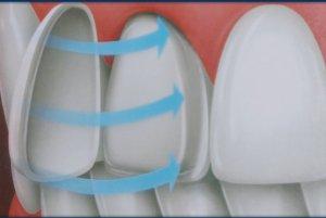 Почему почернел зуб под пломбой