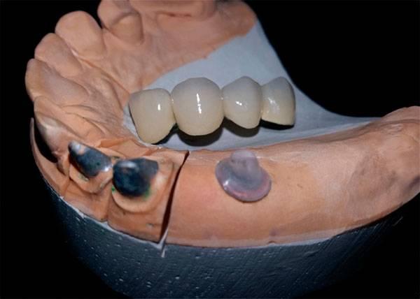 Гипсовая модель челюсти