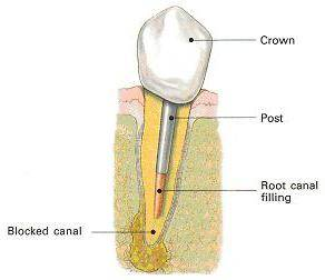штифты в стоматологии