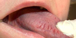 Складчатый тип заболевания