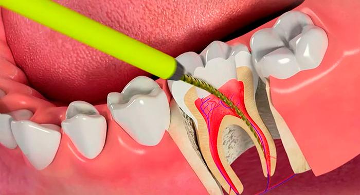 Чем успокоить зубной нерв в домашних условиях — Зубы