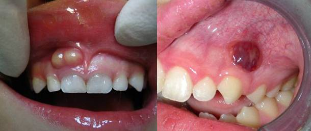 За сколько дней проходит флюс — Зубы