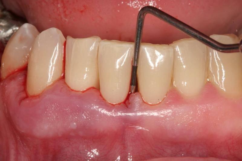 пародонтит вызывает выпадение зубов