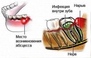 инфекция и нарыв