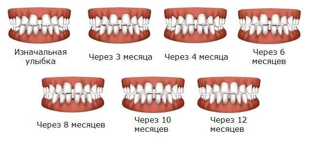 Капы для выравнивания зубов: до и после
