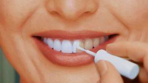 покрытие зубов лаком со фтором