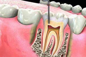 Зубной нерв