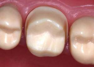 Фото: Зуб обточенный под металлокерамику
