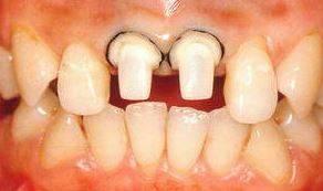 Фото: Обточка зубов с уступом