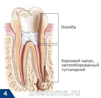 Пломбирование дефекта коронки зуба