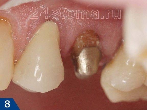 Культивая вкладка фиксирована в канале корня зуба