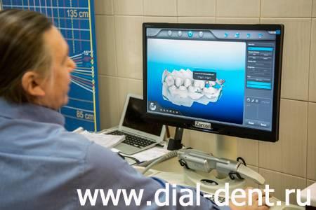 сканирование зубов