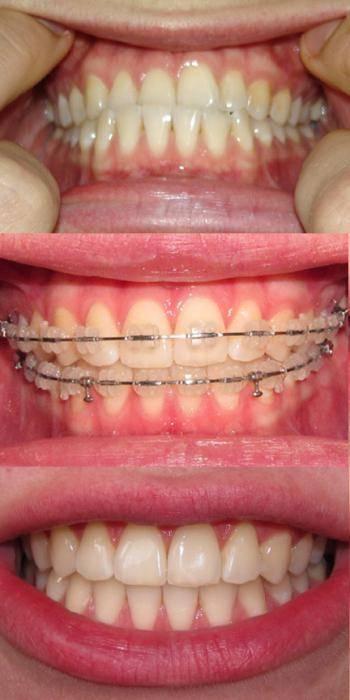 Зачем ставят брекеты на зубы