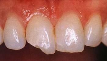 Сколы на зубах