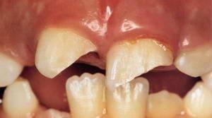 Скол эмали на зубе что делать