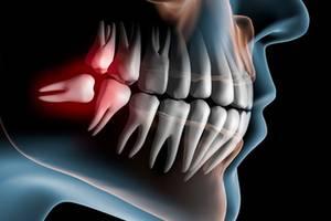 Рекомендации по лечению ретинированных зубов