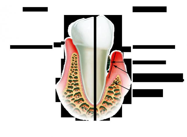 Можно ли зубные капли беременным