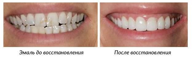 Результат восстановления зубной эмали
