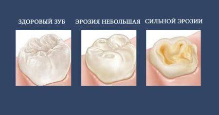 стадии разрушения зубов