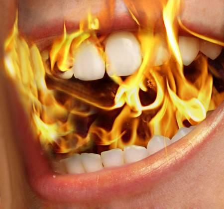 Синдром жжения полости рта – глоссалгия: симптомы, причины и лечение