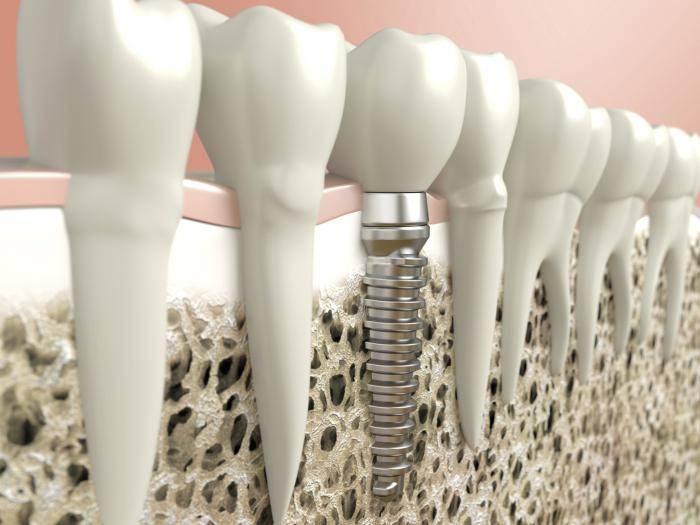 импланты зубов противопоказания заболевания