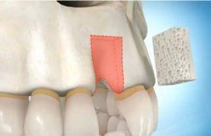 Когда можно ставить имплант после удаления зуба — Зубы
