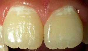 Появление гиперестезии из-за кариеса зубов