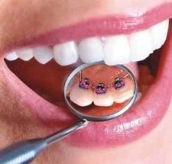 Кровоточение десен после удаления зуба