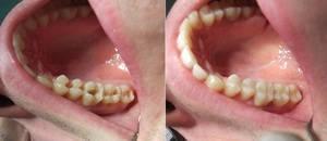 Пломбировка зубов в стоматологическом кабинете