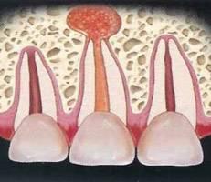 Болит запломбированный зуб без нерва при накусывании