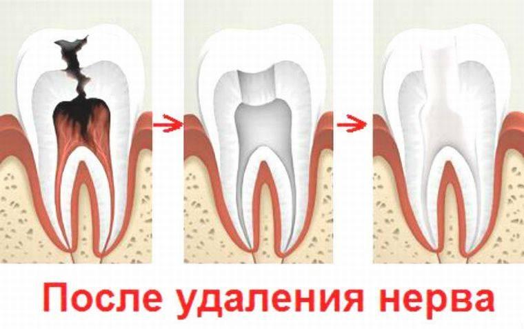 после удаления нерва зуба