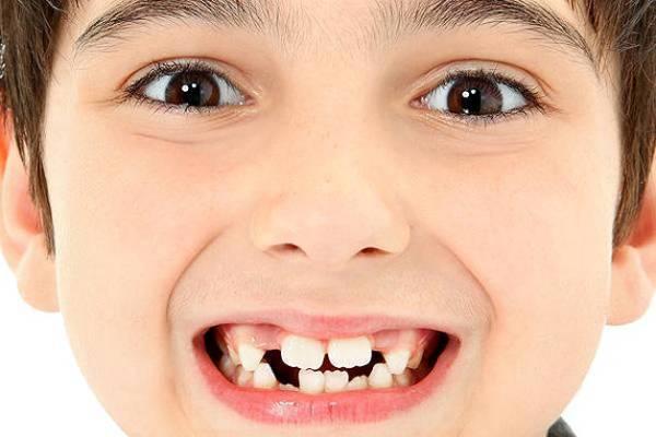 продолжительность роста постоянных зубов у ребенка