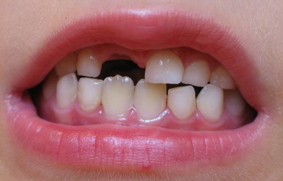 Молочные передние зубы выпали а коренные не растут