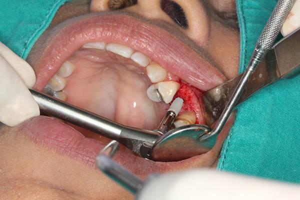 какой антибиотик после имплантации зубов