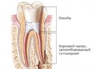 фото: Пломбировка каналов и коронковой части зуба