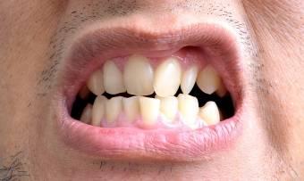 Чем можно выровнять зубы в домашних условиях