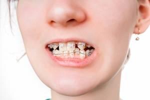 Ровные зубы без врача —возможно ли это