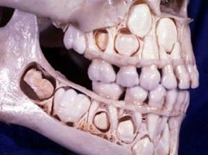 Зубы человека меняются лишь один раз в жизни