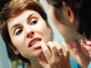 Польза хлоргексидина при заболеваниях полости рта