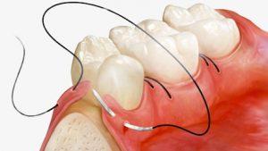 Через сколько снимают швы после удаления зуба
